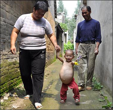 Foetus-child_380_883548ab